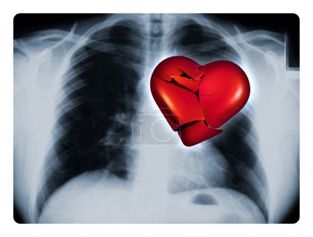 Photo for X-ray of a male chest showing one broken red heart - Royalty Free Image