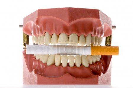 Dental mold biting a cigarette