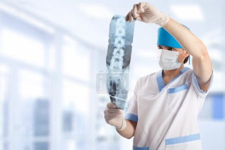 Medical doctor looking at x-ray picture of spinal column in hosp
