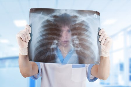 Medical doctor looking through x-ray picture of lungs in hospita