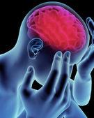 Mozku, bolest hlavy, migréna, Alzheimerovy choroby a demence koncept